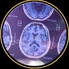 Brain image scan